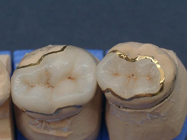 Накладки из не металлокерамики на зубы