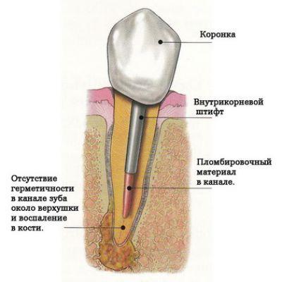 Если в зубе киста как долго можно не лечить