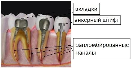 """Штифты и культевые вкладки   Клиника """"Добрынинская"""""""