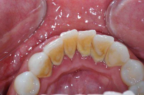 Почему появляется камень на зубах