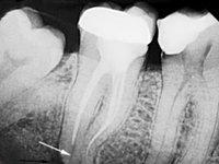 Неудачное лечение пульпита (корневые каналы запломбированы не до конца)