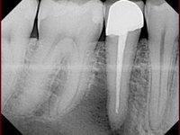 В области верхушки корня нижнего зуба периодонтальный абсцесс