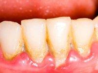 Скопление микробного зубного налета у шеек зубов фото