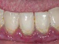 Скопление большого количество мягкого микробного зубного налета фото
