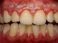 В области шеек всех зубов скопление мягкого зубного налета фото