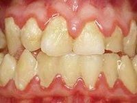 Огромное количество мягкого микробного зубного налета фото