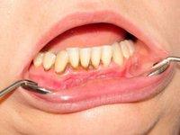 Пигментированные твердые зубные отложения (зубной камень) фото