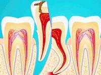 Гемисекция корня зуба при гранулеме