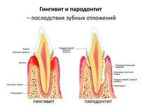 Схема отличия гингивита от пародонтита
