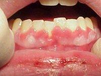 Гингивит, сопутствующий герпетическому стоматиту