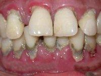 Большое количество зубных отложений фото