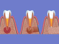 Резекция корня зуба при гранулеме