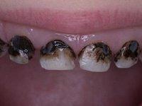 Зубы после серебрения фото