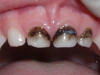 Вид зубов после серебрения фото