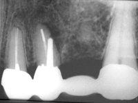 Перфорация корня зуба, допущенная при установке штифта