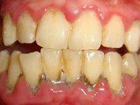 Обильные отложения зубного камня в области нижних зубов фото