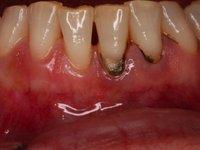 Зубной камень в области нижних резцов фото