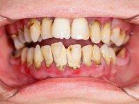 Огромное количество наддесневого и поддесневого зубного камня фото