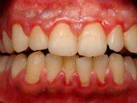 Скопления мягкого зубного налета в области шеек зубов фото