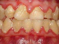 Массивные скопления мягкого зубного налета фото