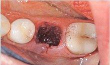 Кровяной сгусток в лунке удаленного зуба спустя несколько дней после удаления