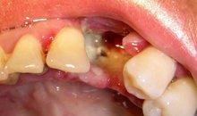 Альвеолит лунки удаленного зуба