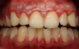Скопления мягкого микробного зубного налета фото