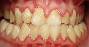 Массивные скопления мягкого микробного зубного налета фото