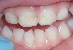 Фото зубов после полировки и глубокого фторирования
