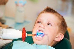 Пломбирование зубов светополимерными пломбами
