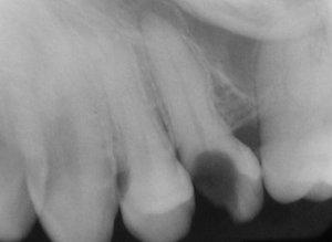 Киста у верхушки зуба