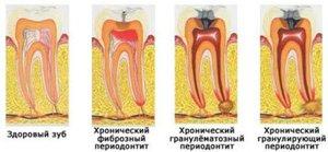 Формы периодонтита зуба фото