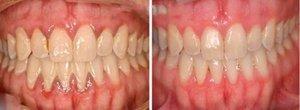Лечение катарального гингивита: ДО и ПОСЛЕ фото 2
