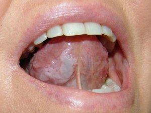 Лейкоплакия не курящего человека