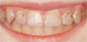 Кариес на передних зубах, лечение