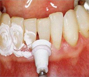 Поилировка зубов после снятия зубных отложений