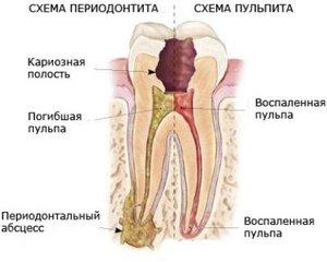 Периодонтит и пульпит: схема развития