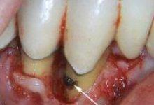 Поддесневой зубной камень на поверхности корня фото